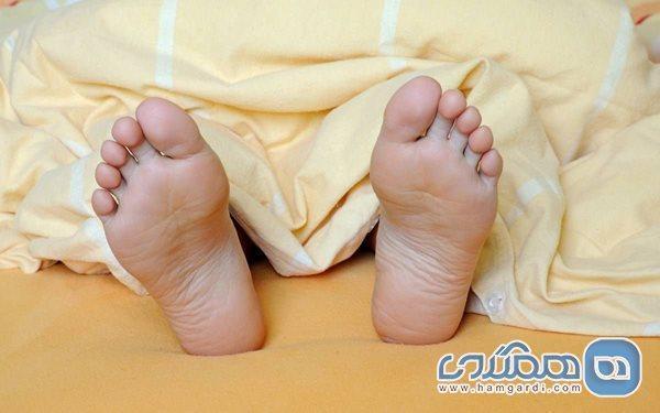 علت زردی کف پاها چیست؟